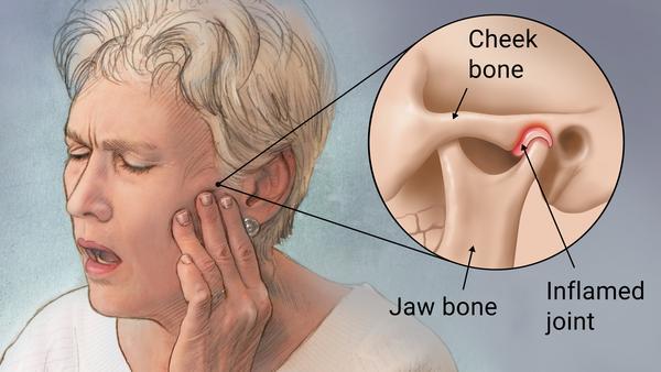 Gresham Tmj Treatment Sore Jaw Clenching And Headaches Main