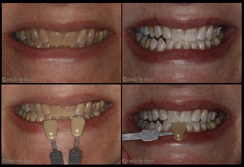 Teeth Whitening Charlotte Cosmetic Dentist Laser Teeth Bleaching