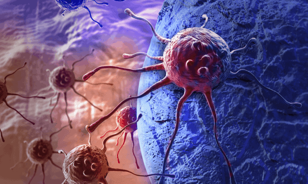 In AML, Time From Diagnosis to Treatment Not Linked to Survival