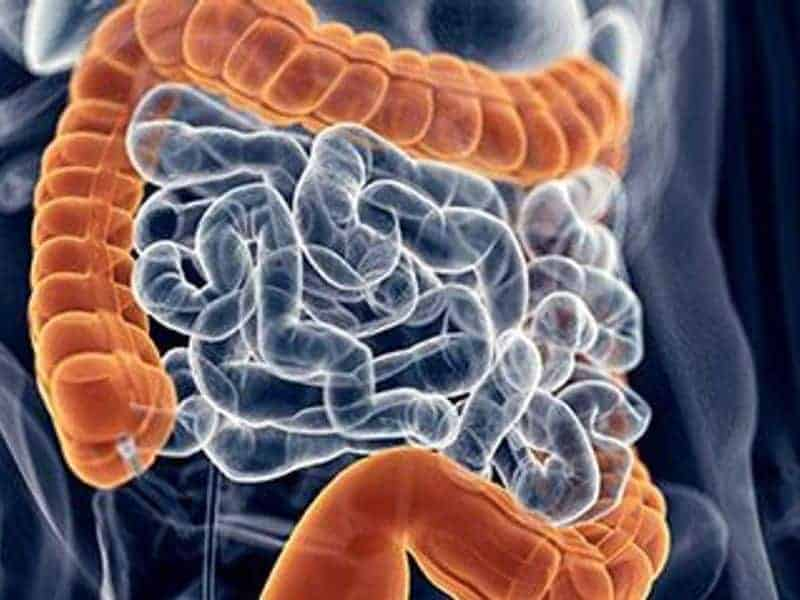 Artificial Intelligence Boosts Colonoscopy Cancer Detection