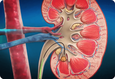 Holmium Laser Fibers for Lithotripsy